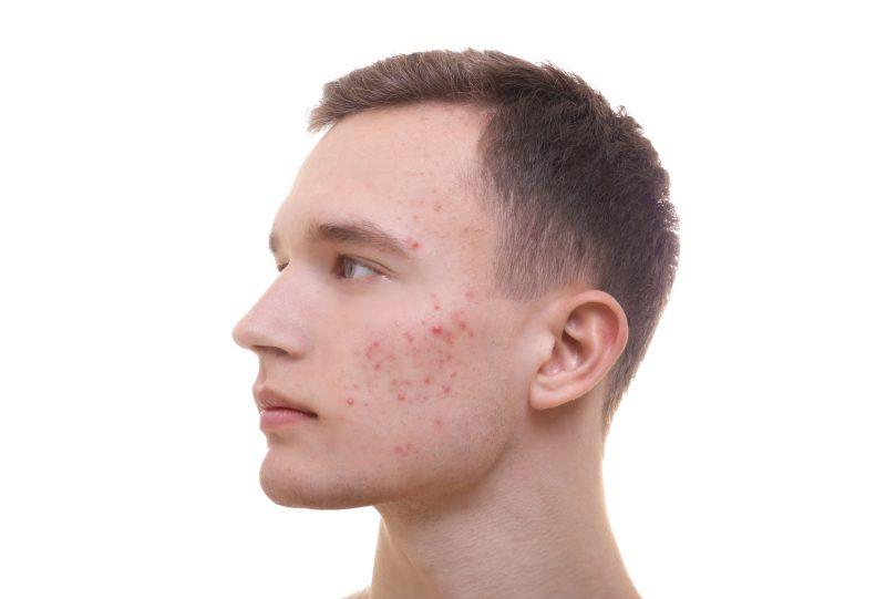 skin enhancer